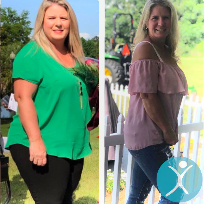Melissa - Gastric Sleeve in Mexico
