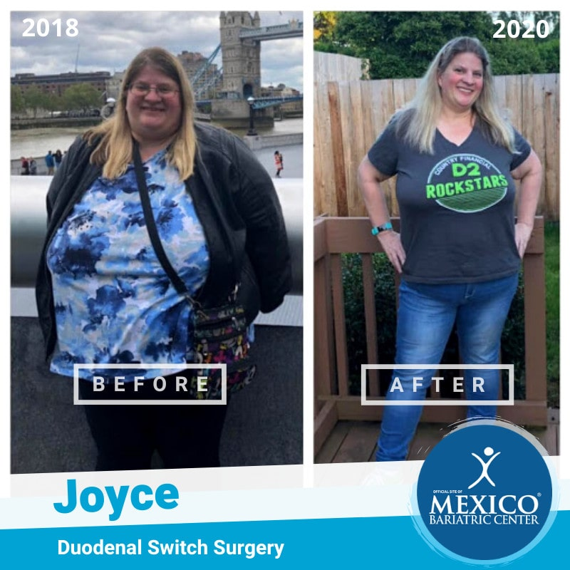 Michelle Duodenal Switch Surgery Before and After Photo