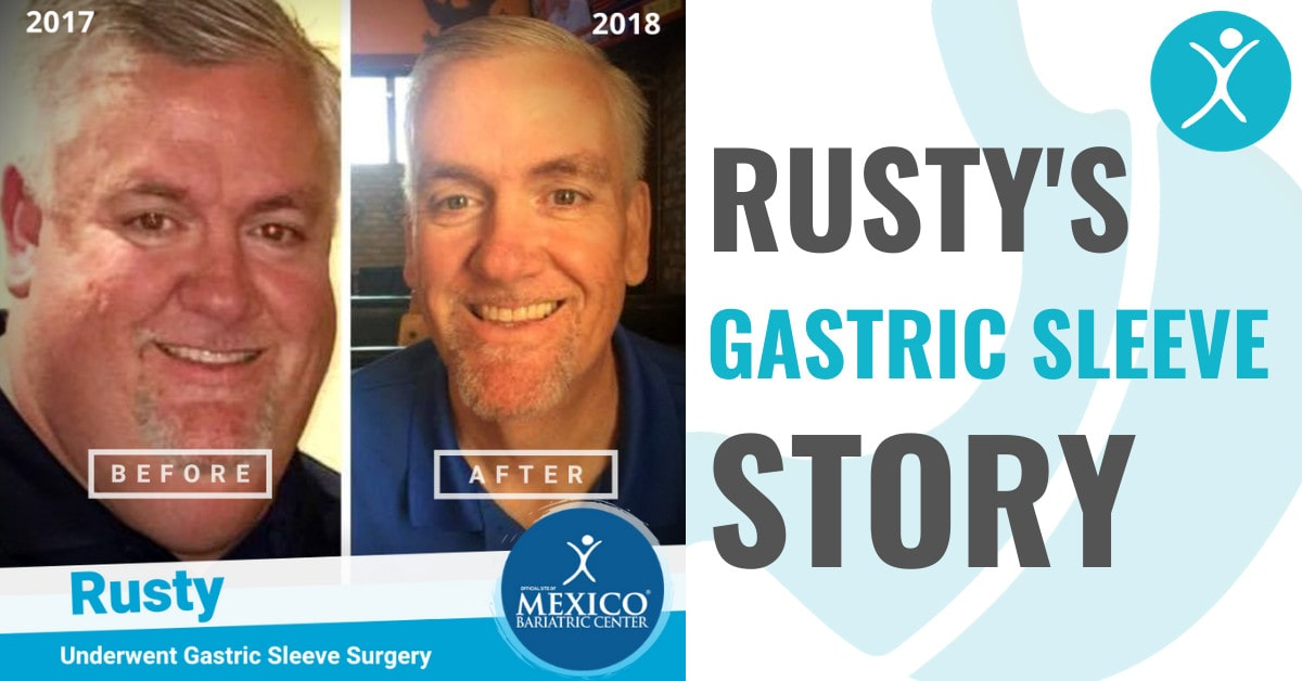 Rusty Gastric Sleeve Surgery in Mexico Success Story