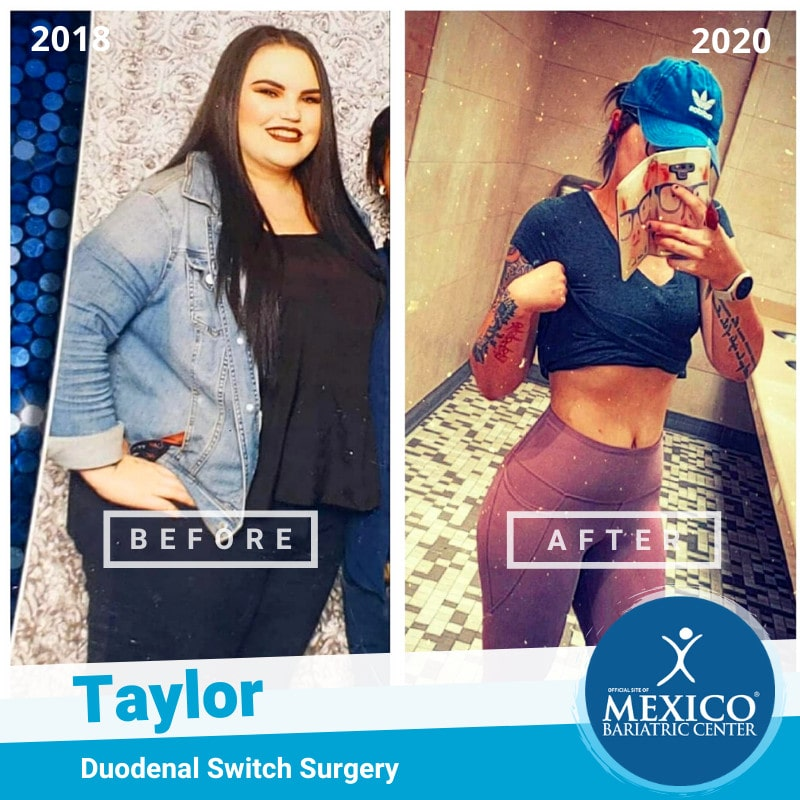 Taylor Gastric Sleeve Surgery Before and After Photo