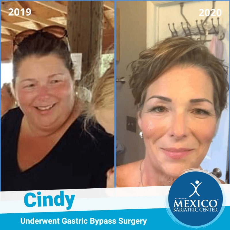 Cindy - Gastric Bypasss Surgery