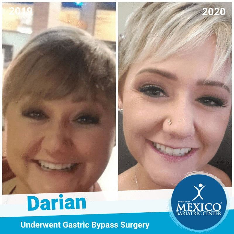 Gastric Bypass Before and After Photo of Darian - Roux en Y Bariatric Surgery