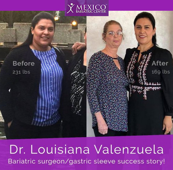 Dr. Lousiana Valenzuela Sanchez - Gastric Sleeve Surgeon and Patient Herself