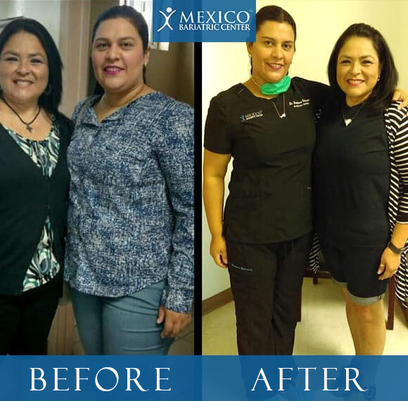 Dr Louisiana Valenzuela Before and After Bariatric Surgery with patient