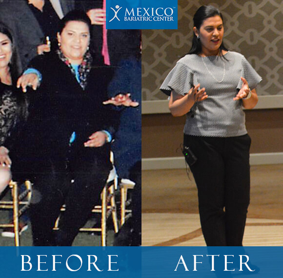 Dr Louisiana Valenzuela Before and After Bariatric Surgery