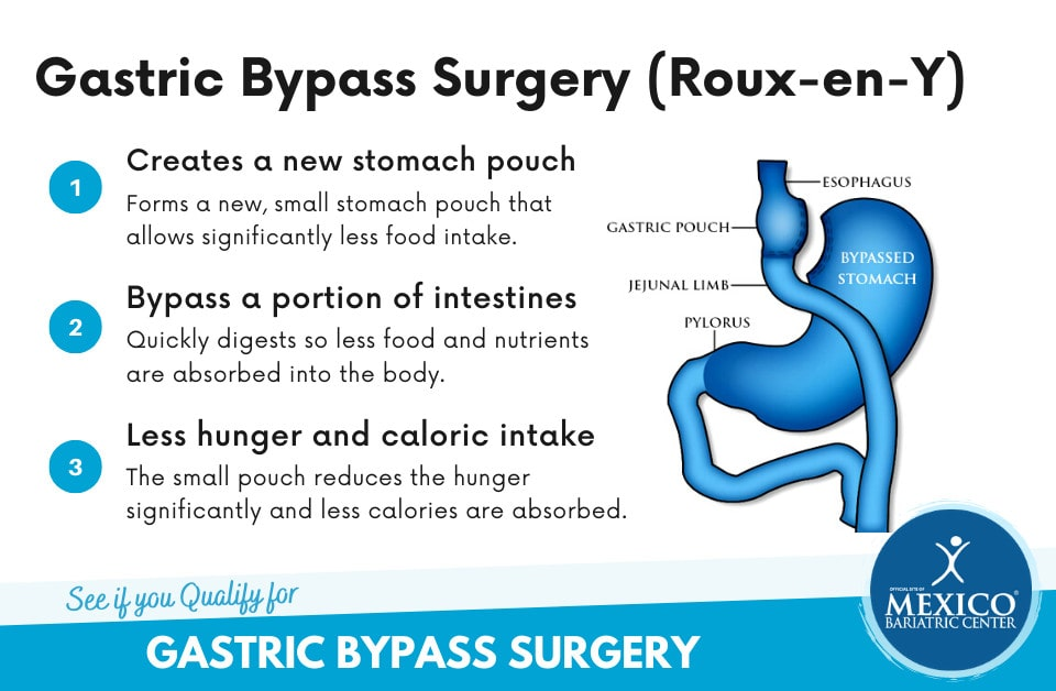 Gastric Bypass Bariatric Surgery in Mexico