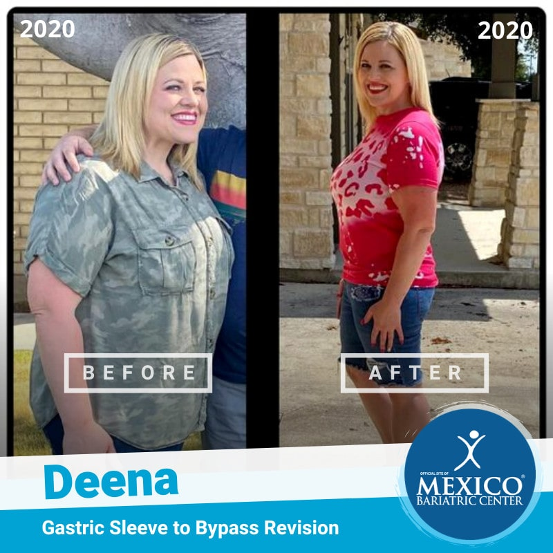 Gastric Sleeve to Bypass Revision Surgery Before and After Patient Photo