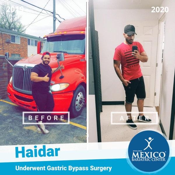 Haidar - Gastric Bypasss Surgery RNY
