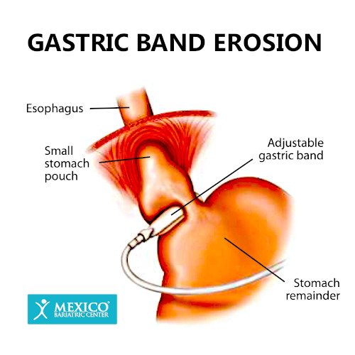 Gastric Band Erosion-Lap Band Complications