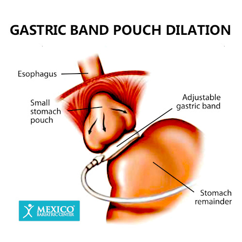 Gastric Band Pouch Dilation-Lap Band Complication