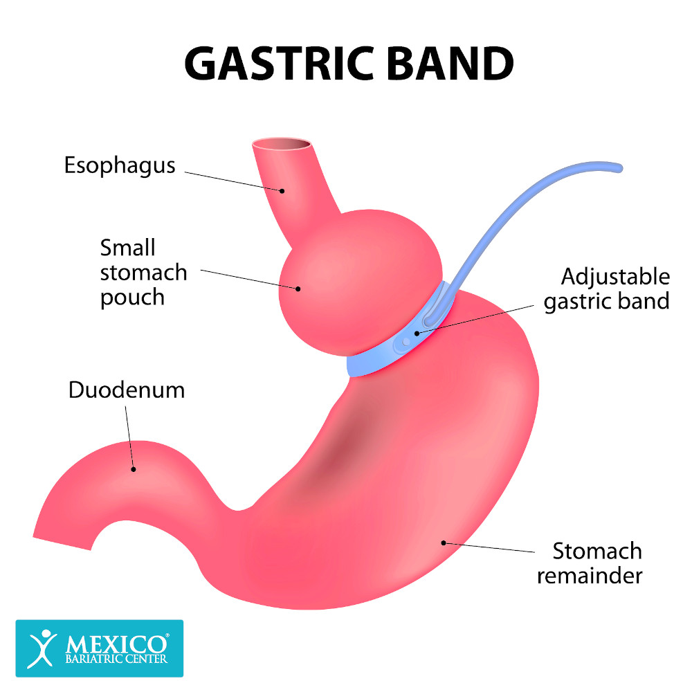 Gastric Banding-Adjustable Gastric Band-Lap Band Surgery