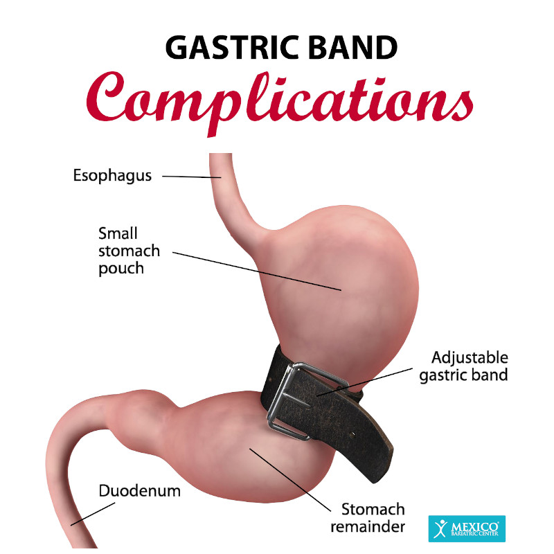 Gastric Lap Band Complications, Risks, and Side Effects