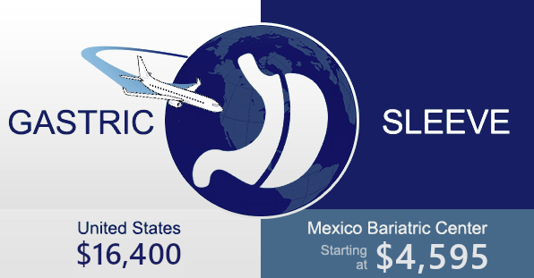 Gastric Sleeve Costs in Mexico compared to United States (updated in 2020)
