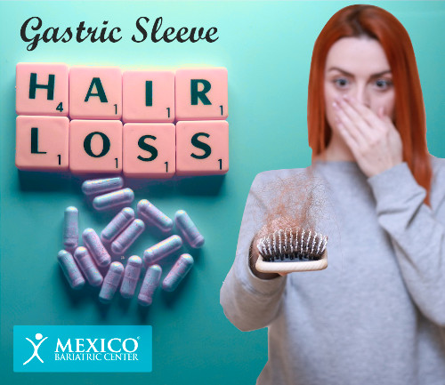 Gastric Sleeve Hair Loss Side Effect
