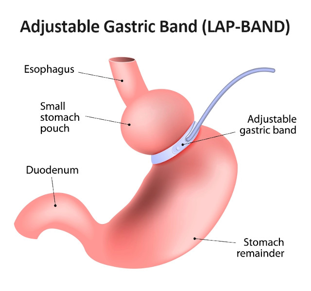 Adjustable Gastric Banding LAP-BAND