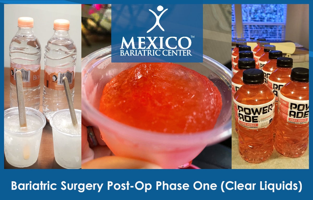Bariatric Surgery Post-Op Diet Clear Liquids - Mexico Bariatric Center
