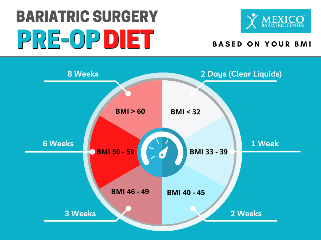 Bariatric Surgery Pre-Op Diet Guidelines Based on BMI