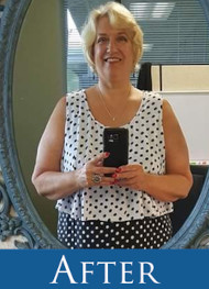 Lori - Gastric Sleeve After
