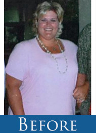 Lori Before and After - Before Gastric SLeeve