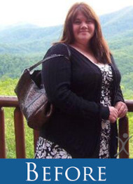 Mary - Before Gastric Sleeve