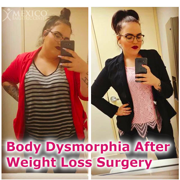 Body Dysmorphia After Weight Loss Surgery - Gastric Sleeve Regrets