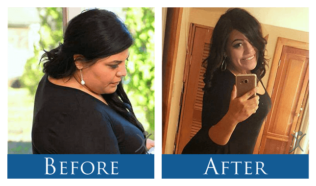 Gabrielle Before_After Gastric Sleeve VSG