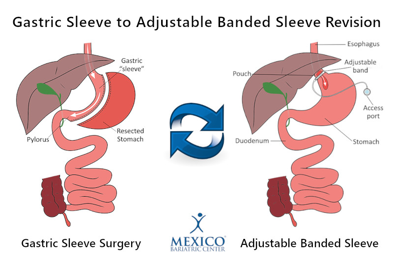 Gastric Sleeve Revision to Adjustable Banded Sleeve - Adding Gastric Band to Sleeve