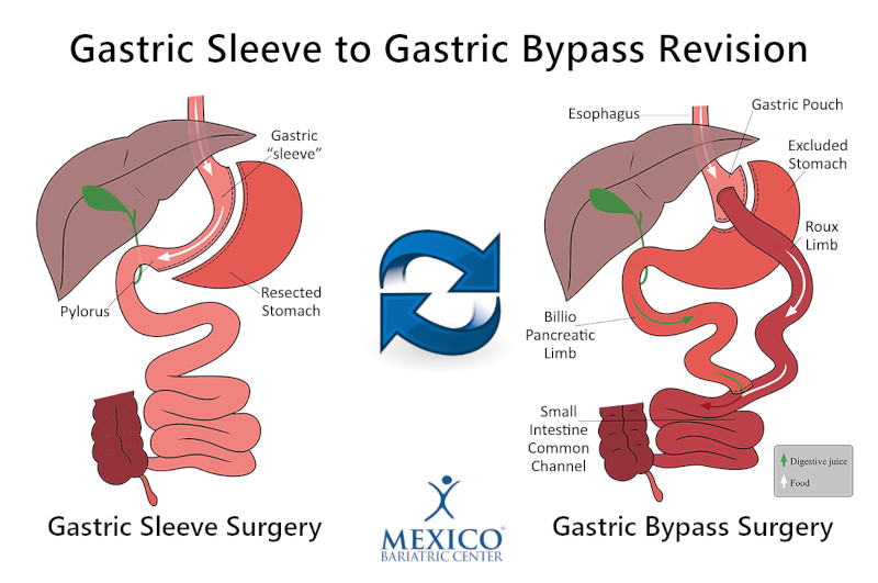 Gastric Sleeve Revision to Gastric Bypass Surgery - Bariatric Surgery Revision