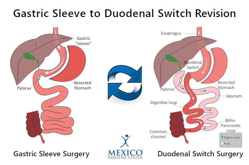 Gastric Sleeve to Duodenal Switch Revision Surgery - Revising VSG to DS