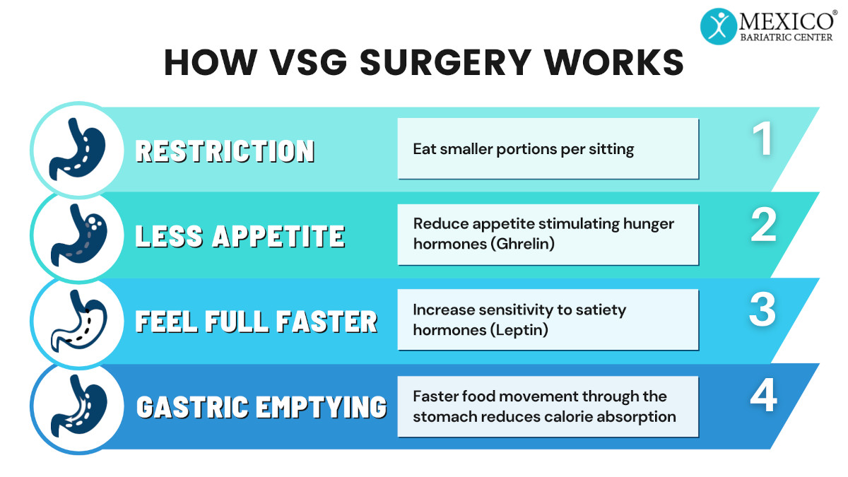 How VSG Surgery Works - Vertical Sleeve Gastrectomy