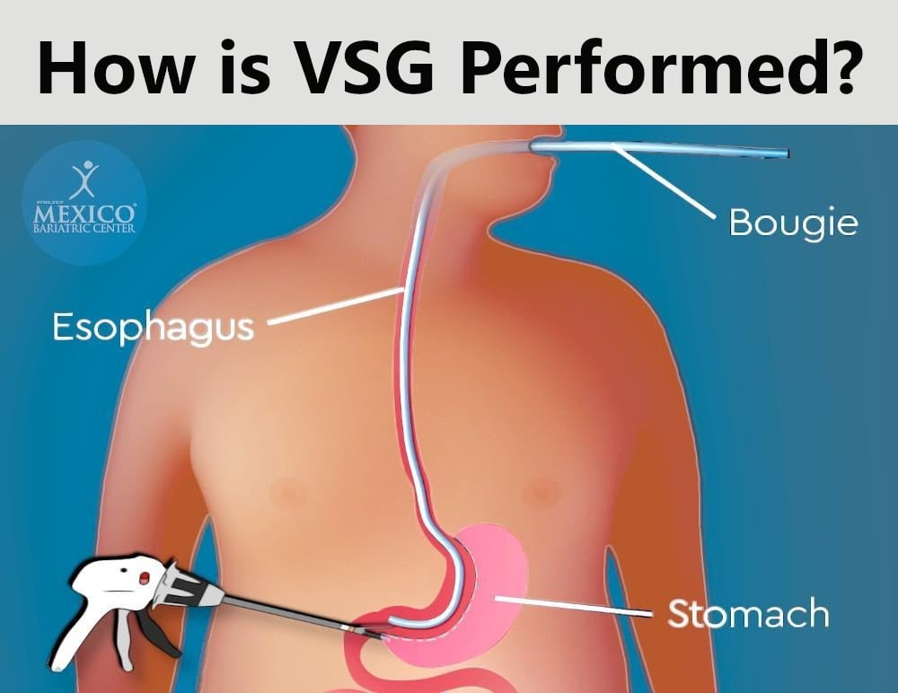 How is VSG Surgery Performed by Bariatric Surgeons