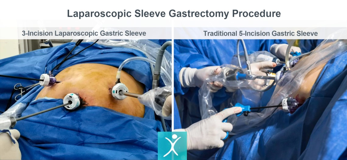 Laparoscopic Sleeve Gastrectomy Procedure - Traditional vs 3 Incisions - Mexico Bariatric Center