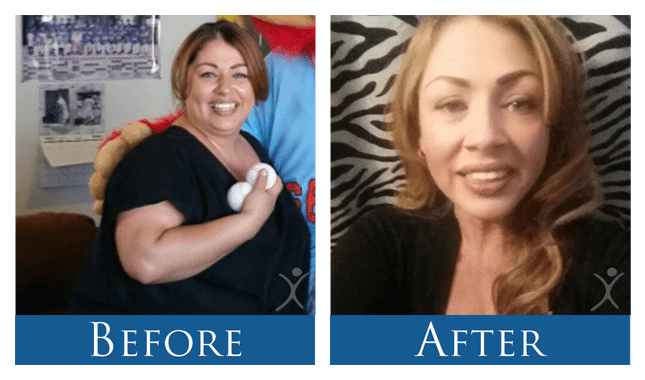 Maria-Before After Photo-Gastric Sleeve Patient