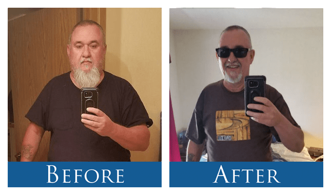 Robert-Before After Photo-Gastric Sleeve Surgery Patient