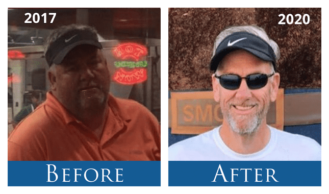 Rusty - Lost nearly 200 lbs. with Vertical Sleeve Gastrectomy Surgery VSG