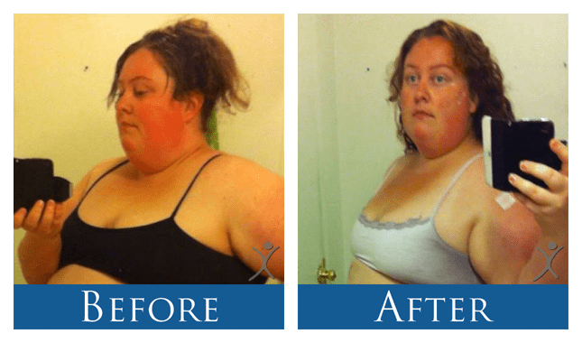 Savannah - 1 Month After Sleeve Gastrectomy Surgery