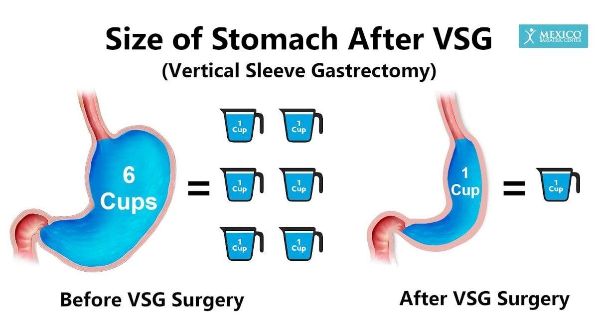 VSG surgery stomach size