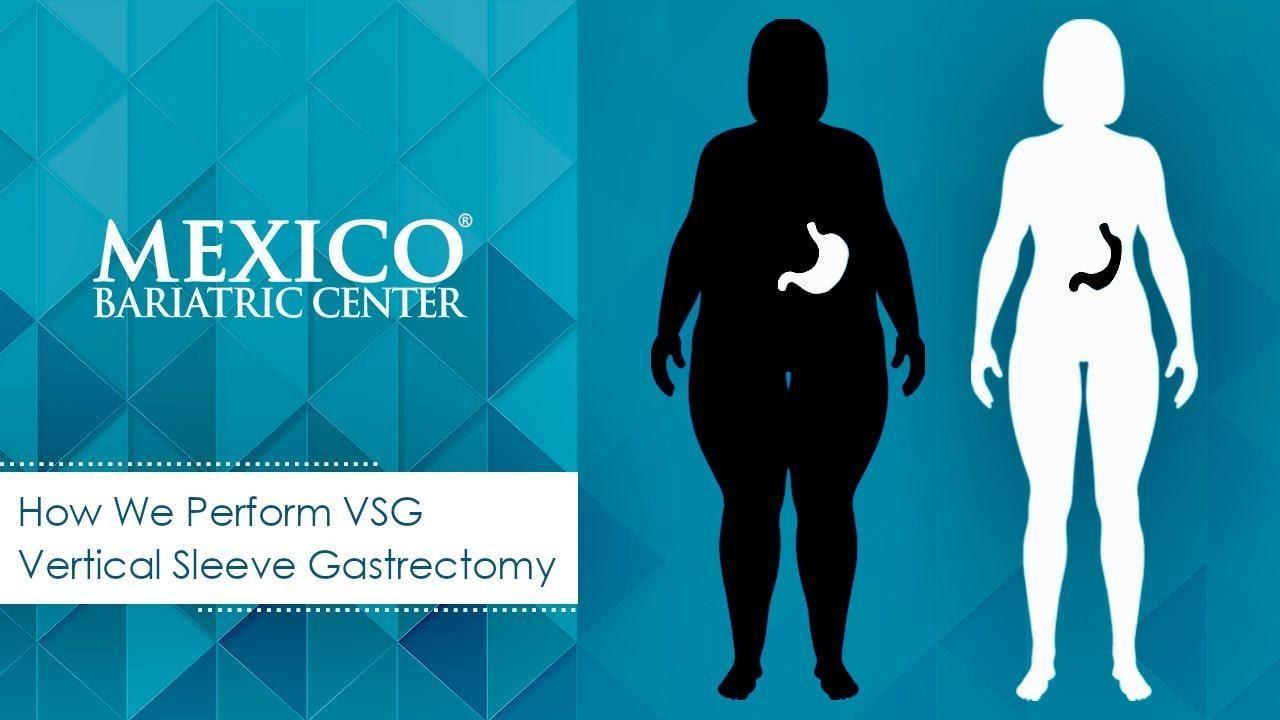 VSG surgical procedure steps