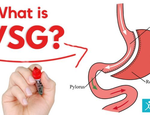 What is VSG Surgery?