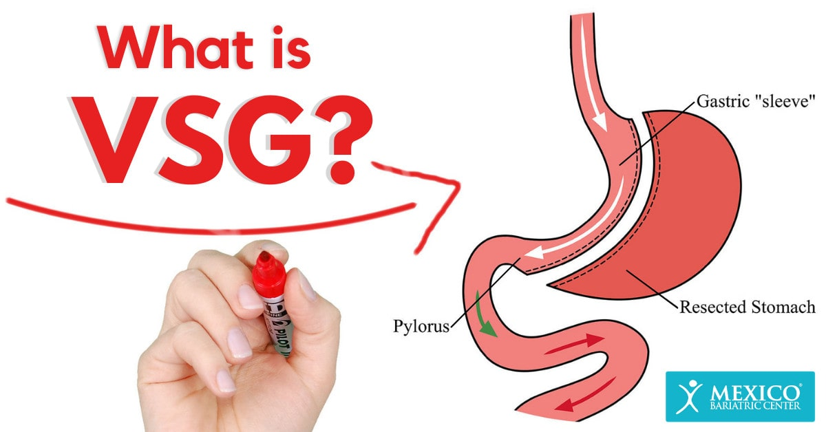 What is VSG surgery