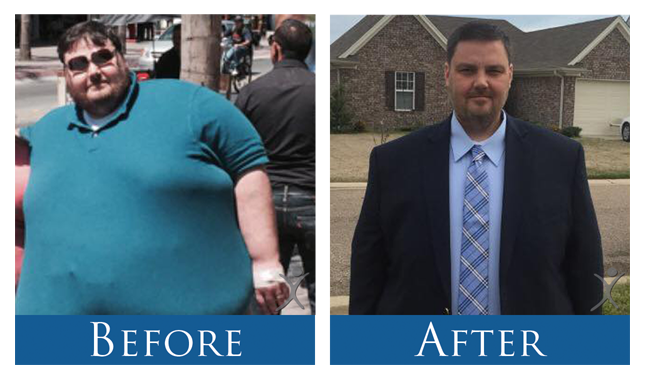 Before and After Patient Extemely-Morbidly Obese Man - Mexico Bariatric Surgery Center