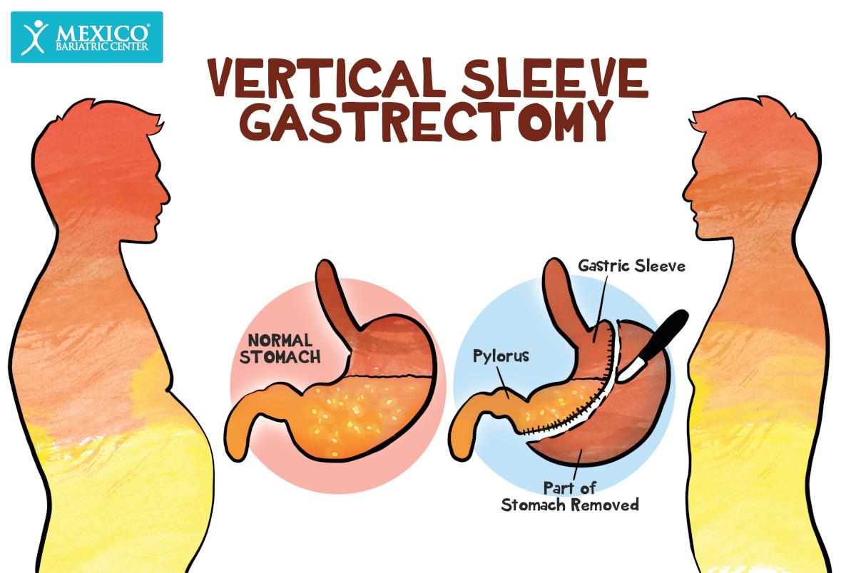 Hunger Hormones After Vertical Sleeve Gastrectomy - Gut Hormones