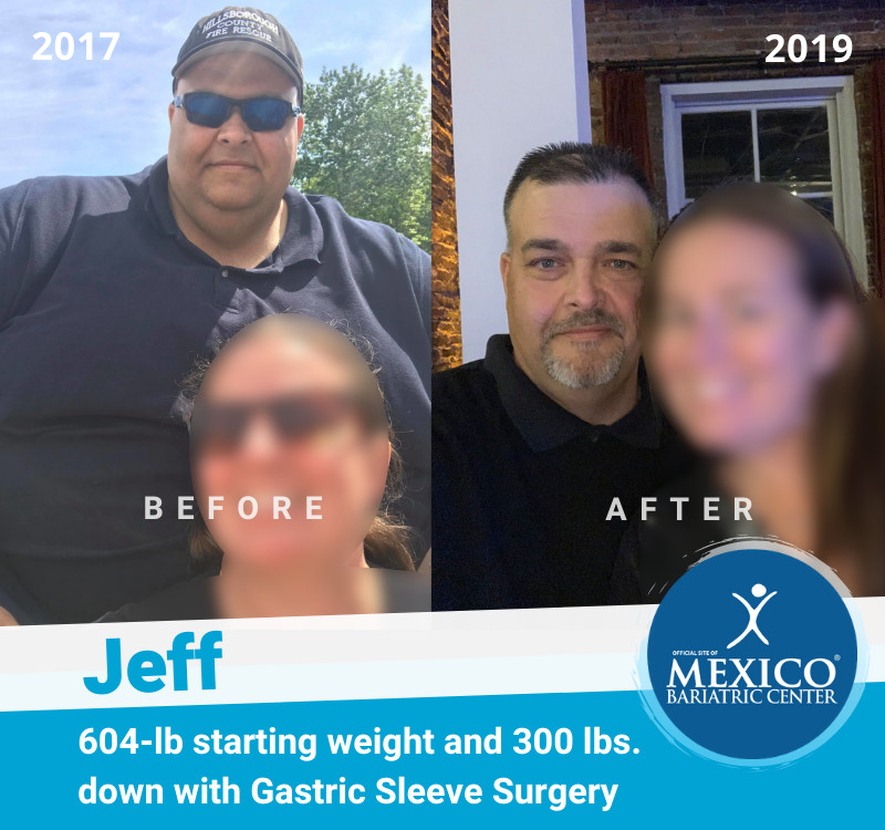 Jeff - 600-lb weight loss surgery high BMI with Mexico Bariatric Center