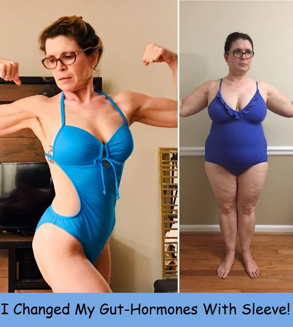 emily friedberg befotre and after sleeve gut hormones changed