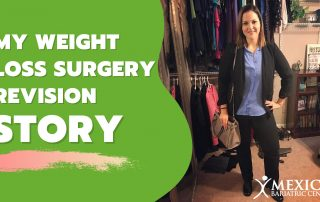 My Weight Loss Surgery Revision in Mexico Story-Kimberly H
