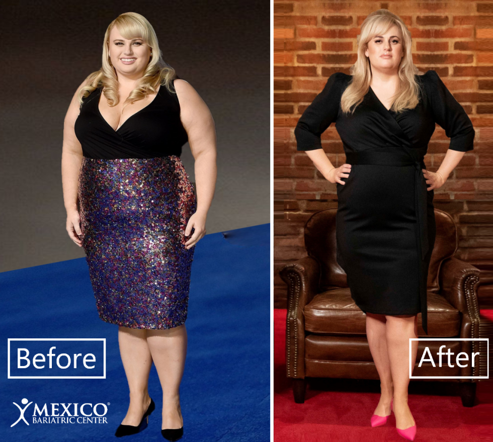 rebel wilson before after weight loss surgery transformation