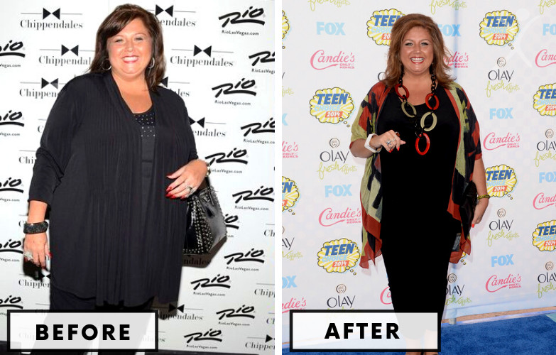 Abby Lee Miller Gastric Bypass - Celebrity Weight Loss Surgery