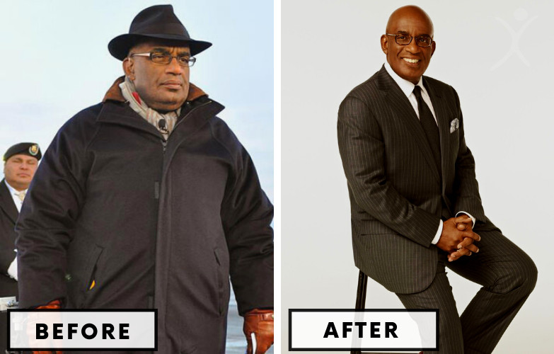 Al Roker Gastric Bypass - Celebrity Weight Loss Surgery