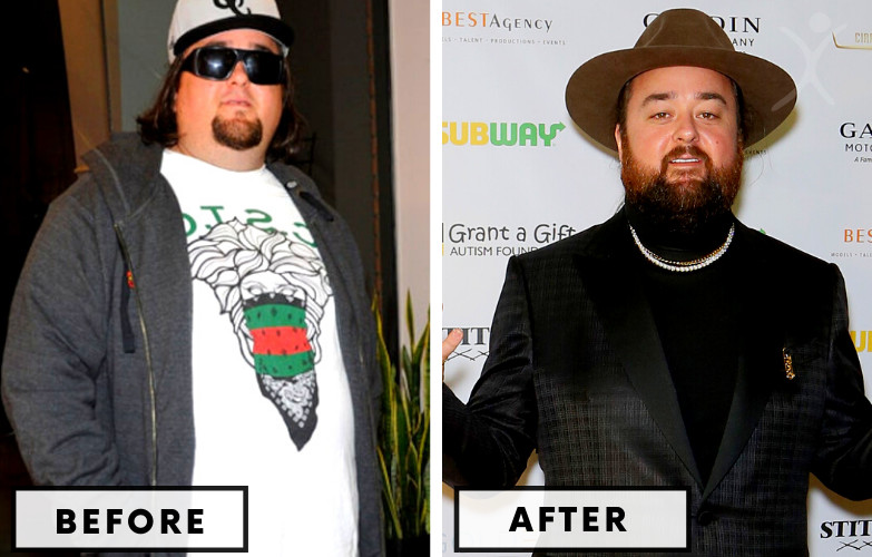 Austin Russel Gastric Sleeve Surgery - Celebrity Weight Loss Surgery