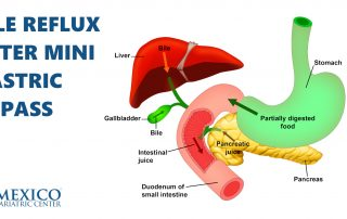 Bile Reflux After Mini Gastric Bypass